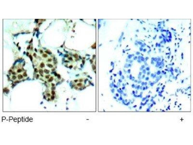 Immunohistochemistry (IHC) image for anti-MAP kinase p38 (p38) (pTyr182) antibody (ABIN4342687)