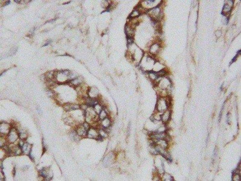 Immunohistochemistry (IHC) image for anti-Cell Division Cycle 42 (GTP Binding Protein, 25kDa) (CDC42) (AA 121-138), (Middle Region) antibody (ABIN3044385)