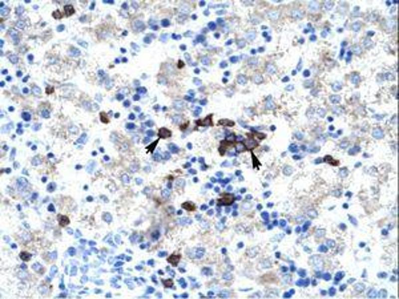 image for anti-Activator of Basal Transcription 1 (Abt1) (AA 174-223) antibody (ABIN202142)