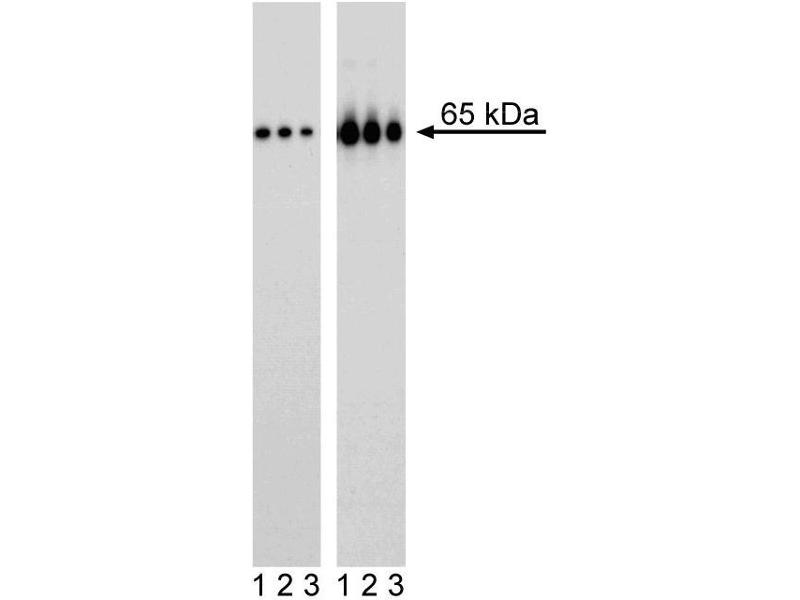 Western Blotting (WB) image for anti-NFKB1 antibody (Nuclear Factor of kappa Light Polypeptide Gene Enhancer in B-Cells 1) (pSer529) (ABIN967610)