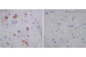 Image no. 1 for anti-G Protein-Coupled Estrogen Receptor 1 (GPER) (N-Term) antibody (ABIN1574017)