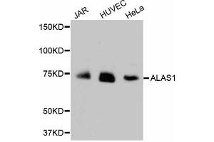 Western Blotting (WB) image for anti-Aminolevulinate, delta-, Synthase 1 (ALAS1) antibody (ABIN5996898)