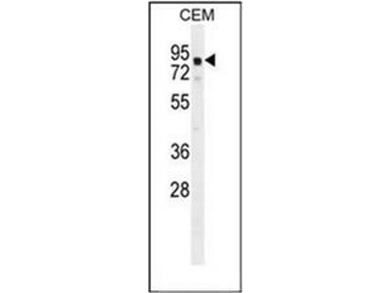 Western Blotting (WB) image for anti-Galactosidase, beta 1-Like 2 (GLB1L2) (AA 482-511), (C-Term) antibody (ABIN952520)