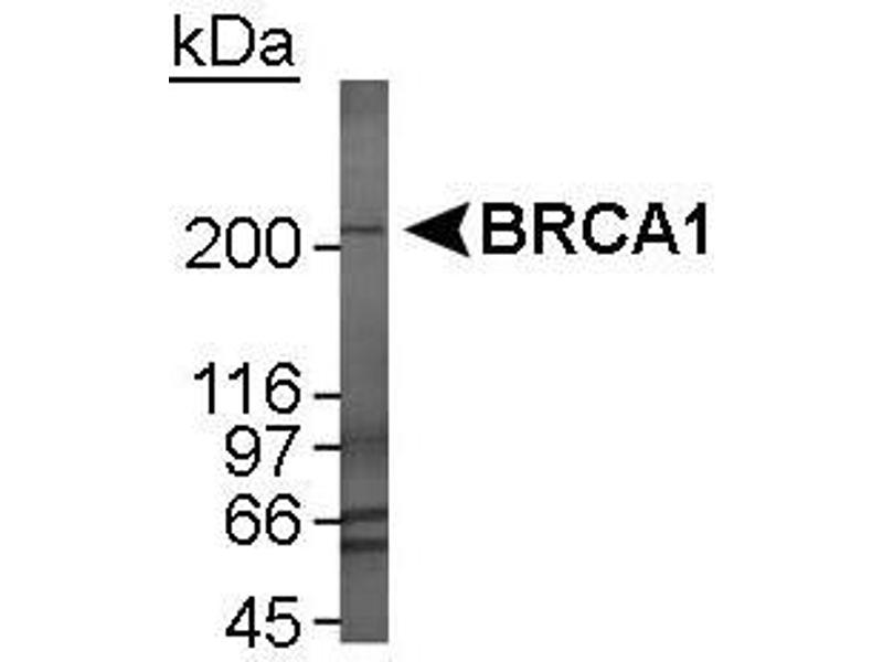 Western Blotting (WB) image for anti-BRCA1 antibody (Breast Cancer 1) (AA 1314-1864) (ABIN253014)