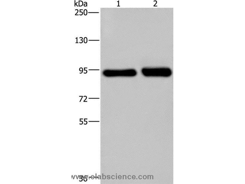 Western Blotting (WB) image for anti-PMS2 Postmeiotic Segregation Increased 2 (S. Cerevisiae) (PMS2) antibody (ABIN2435222)