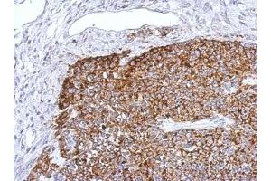 Immunohistochemistry (Paraffin-embedded Sections) (IHC (p)) image for anti-TNF Receptor-Associated Factor 6 (TRAF6) (Center) antibody (ABIN443234)