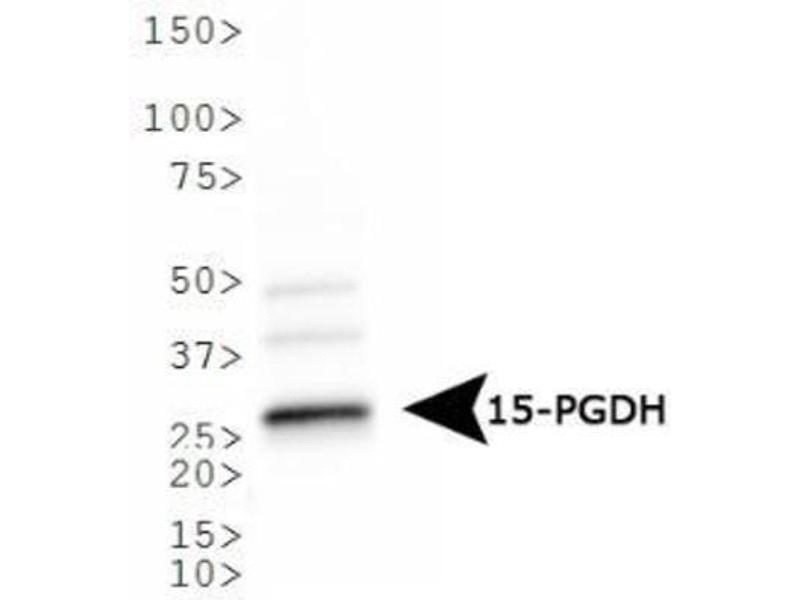 Western Blotting (WB) image for anti-Hydroxyprostaglandin Dehydrogenase 15-(NAD) (HPGD) antibody (ABIN268223)