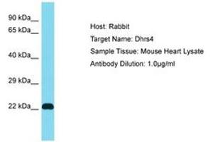 Image no. 1 for anti-Dehydrogenase/reductase (SDR Family) Member 4 (DHRS4) (AA 51-100) antibody (ABIN6750474)
