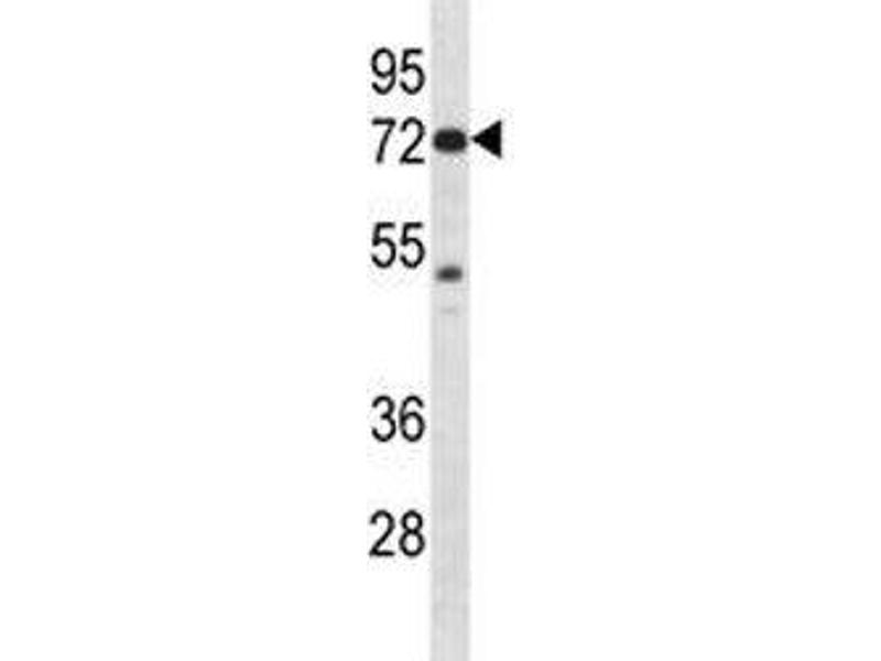 Western Blotting (WB) image for anti-P21-Activated Kinase 4 (PAK4) (AA 187-216) antibody (ABIN3032118)