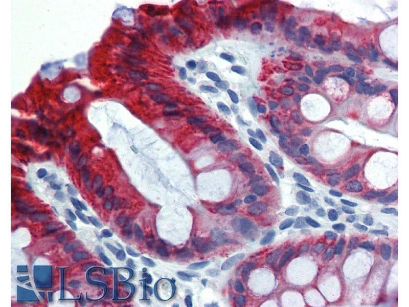 Immunohistochemistry (IHC) image for anti-KRT18 antibody (Keratin 18)  (FITC) (ABIN192045)