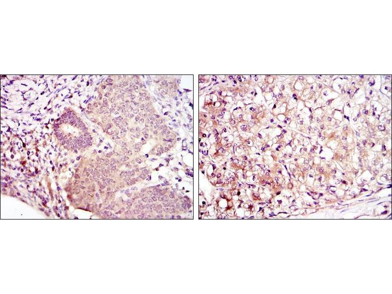 Immunohistochemistry (IHC) image for anti-MAP2K6 antibody (Mitogen-Activated Protein Kinase Kinase 6) (ABIN969270)