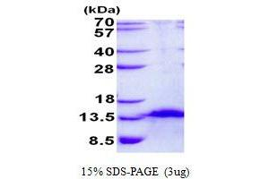 Image no. 1 for Chromosome 4 Open Reading Frame 7 (C4orf7) protein (His tag) (ABIN1098501)