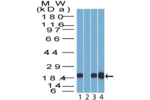 Western Blotting (WB) image for anti-Stratifin (SFN) antibody (ABIN4276706)