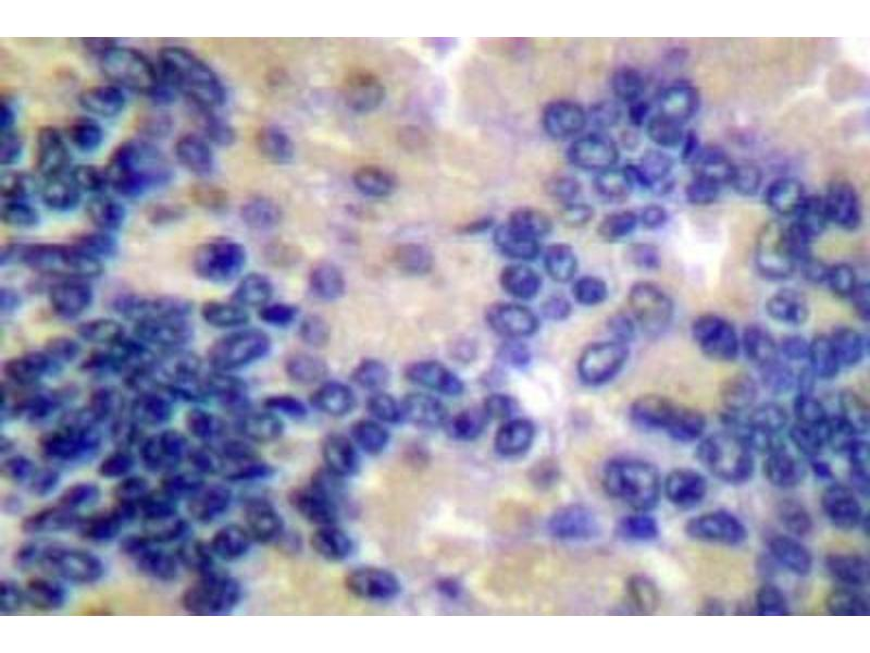 Immunohistochemistry (Paraffin-embedded Sections) (IHC (p)) image for anti-Caspase 10, Apoptosis-Related Cysteine Peptidase (CASP10) antibody (ABIN407612)
