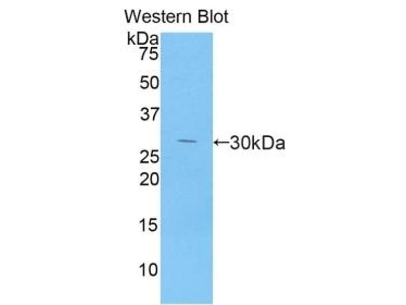 Dipeptidyl-Peptidase 4 (DPP4) ELISA Kit (3)