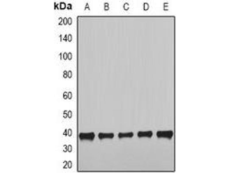 Western Blotting (WB) image for anti-NudE Neurodevelopment Protein 1 (NDE1) antibody (ABIN3197744)