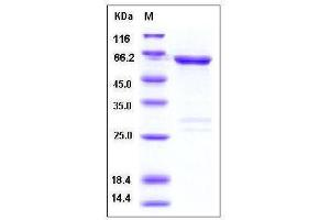 Image no. 1 for tyrosine Kinase, Non-Receptor, 2 (TNK2) (AA 110-476) protein (GST tag) (ABIN2216124)