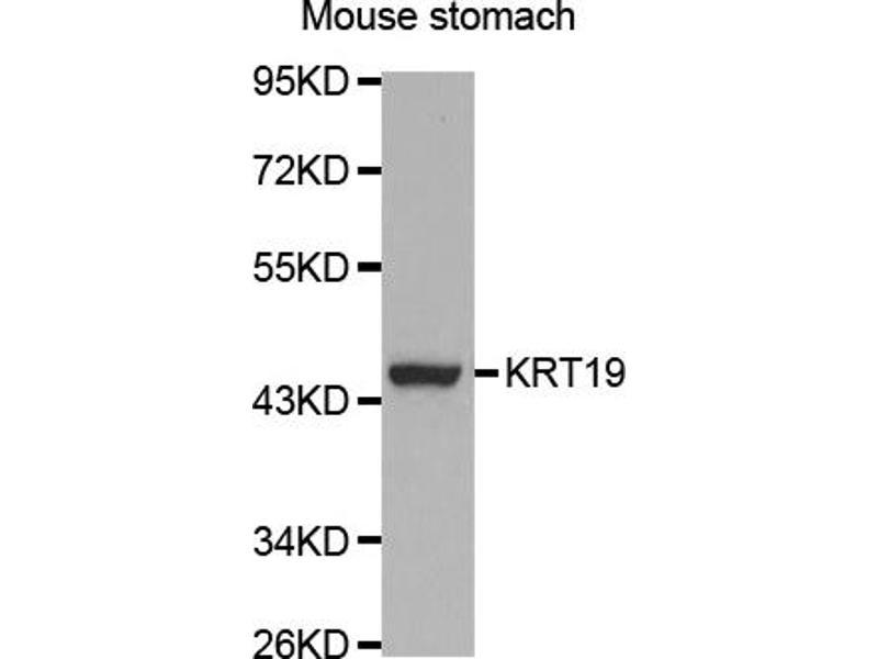 Image no. 2 for anti-Keratin 19 (KRT19) antibody (ABIN5964864)