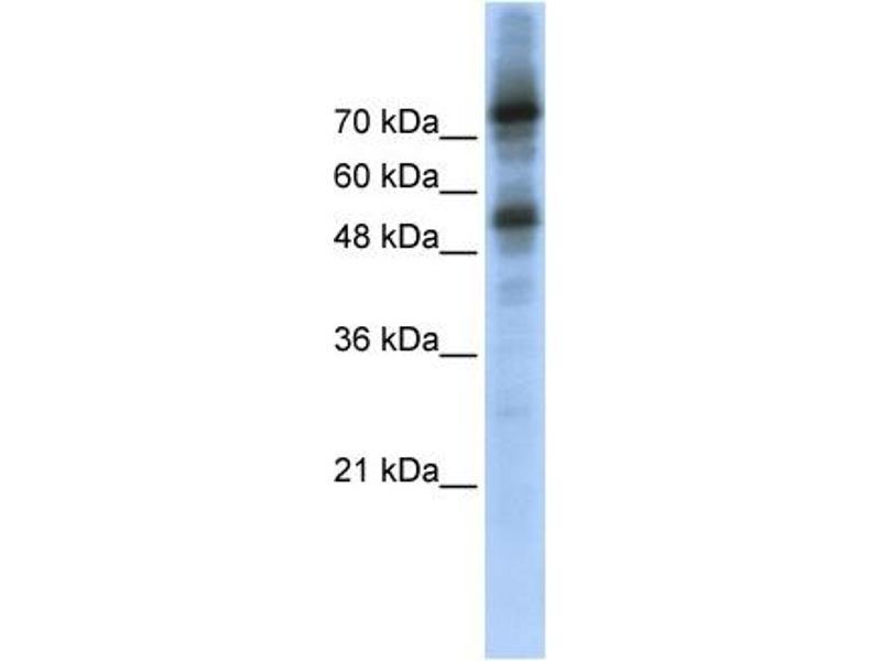 Western Blotting (WB) image for anti-FOXM1 antibody (Forkhead Box M1) (Middle Region) (ABIN501829)
