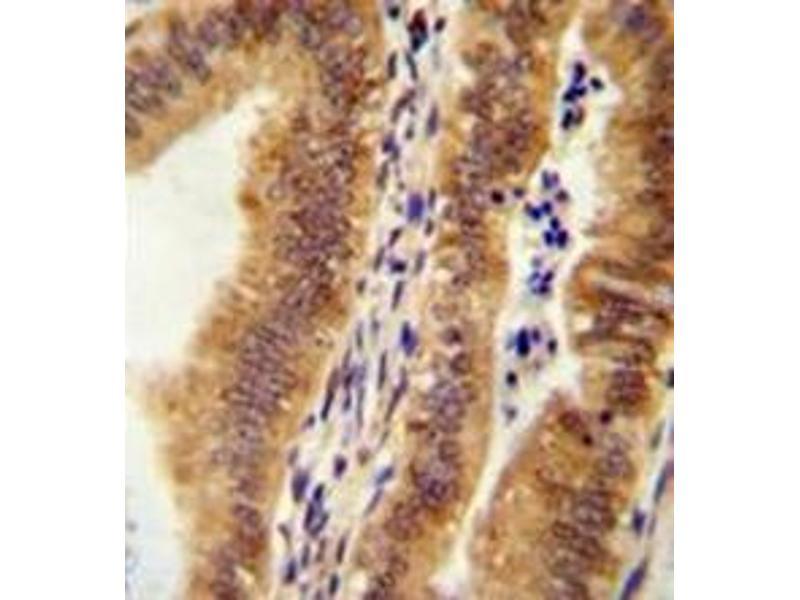 Immunohistochemistry (Paraffin-embedded Sections) (IHC (p)) image for anti-KIAA1609 (KIAA1609) (AA 433-464), (C-Term) antibody (ABIN953064)