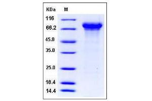 Image no. 1 for Kininogen 1 (KNG1) (AA 21-480) (Active) protein (His tag) (ABIN2007849)