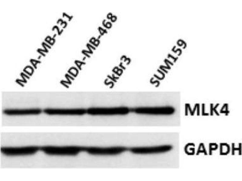 Western Blotting (WB) image for anti-Mitogen-Activated Protein Kinase Kinase Kinase MLK4 (KIAA1804) (AA 986-1036) antibody (ABIN445417)