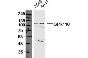 Image no. 1 for anti-G Protein-Coupled Receptor 110 (GPR110) antibody (ABIN1713662)