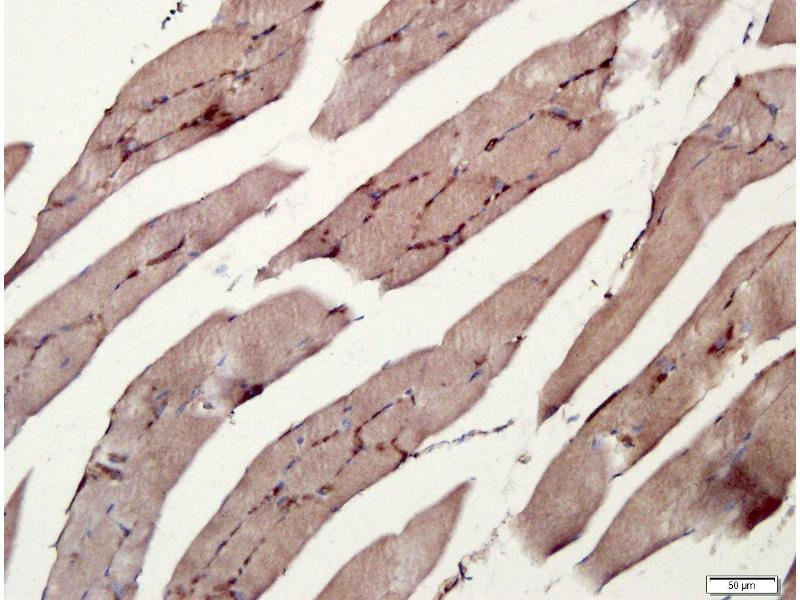 Immunohistochemistry (Paraffin-embedded Sections) (IHC (p)) image for anti-RANK (CD265) antibody (ABIN1714635)
