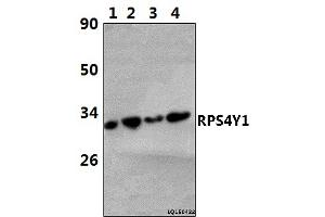 Image no. 1 for anti-Ribosomal Protein S4, Y-Linked 1 (RPS4Y1) (AA 225-270) antibody (ABIN6713039)