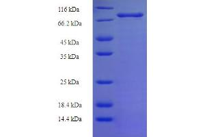 Image no. 1 for X-Linked Inhibitor of Apoptosis (XIAP) (AA 1-497), (full length) protein (His-SUMO Tag) (ABIN5710630)