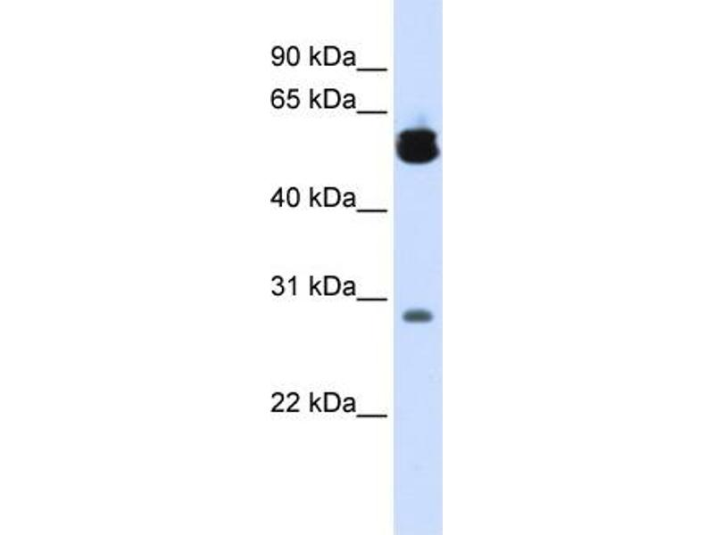 Western Blotting (WB) image for anti-tyrosine 3-Monooxygenase/tryptophan 5-Monooxygenase Activation Protein, zeta Polypeptide (YWHAZ) (Middle Region) antibody (ABIN2783207)