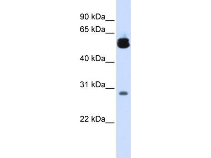 Image no. 1 for anti-Tyrosine 3-Monooxygenase/tryptophan 5-Monooxygenase Activation Protein, zeta Polypeptide (YWHAZ) (Middle Region) antibody (ABIN2783207)