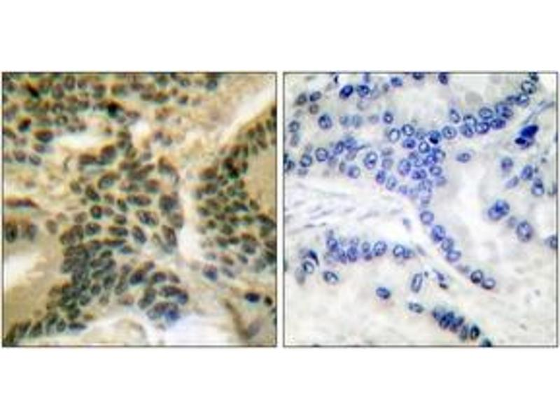 Immunohistochemistry (IHC) image for anti-Protein Kinase C, zeta (PRKCZ) (AA 376-425), (pThr410) antibody (ABIN1531192)