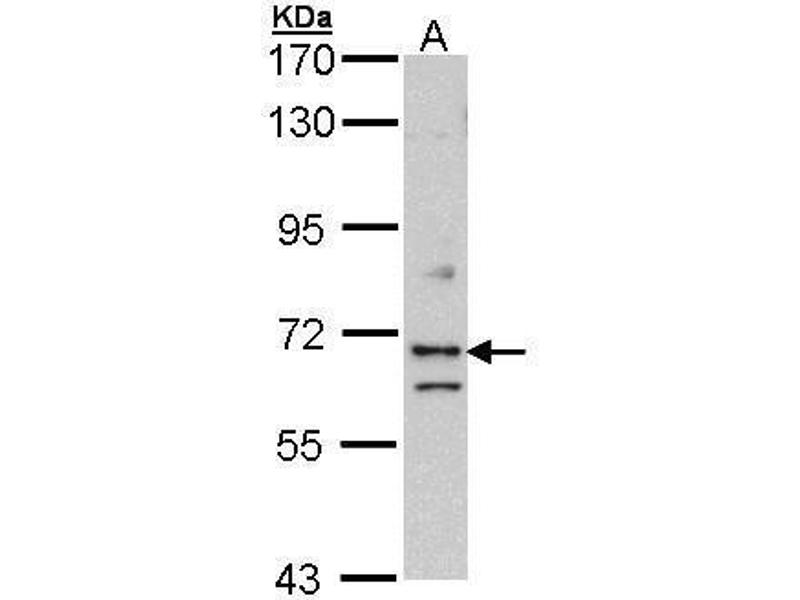 Western Blotting (WB) image for anti-Exocyst Complex Component 7 (EXOC7) (Center) antibody (ABIN2856847)