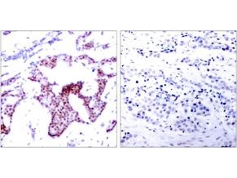 Immunohistochemistry (IHC) image for anti-Nuclear Factor-KB P65 (NFkBP65) (AA 249-298), (pSer276) antibody (ABIN1531923)