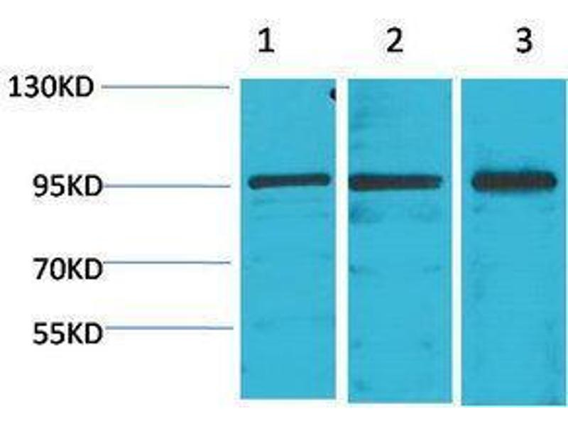 Western Blotting (WB) image for anti-Signal Transducer and Activator of Transcription 2, 113kDa (STAT2) antibody (ABIN3188040)