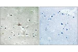 Immunohistochemistry (IHC) image for anti-TRKB antibody (Neurotrophic Tyrosine Kinase, Receptor, Type 2) (pTyr706) (ABIN1532083)