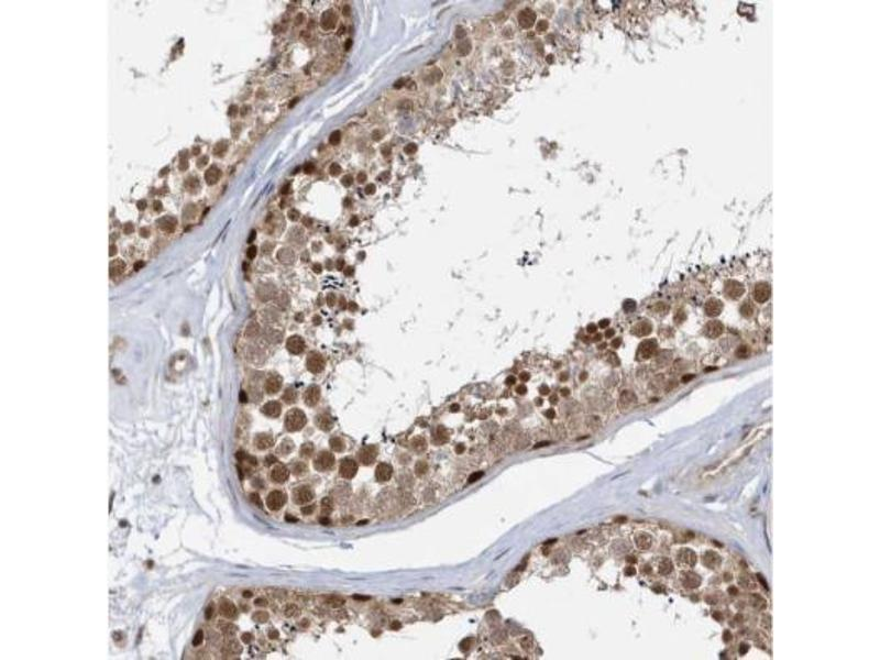 Immunohistochemistry (Paraffin-embedded Sections) (IHC (p)) image for anti-MAX Interactor 1 (MXI1) antibody (ABIN4336867)