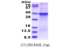 Image no. 1 for Guanine Nucleotide Binding Protein (G Protein), beta Polypeptide 1 (GNB1) (AA 1-340) protein (His tag) (ABIN5853684)