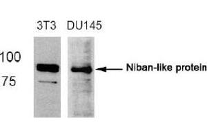 image for anti-FAM129B antibody (Family with Sequence Similarity 129, Member B) (Ser712) (ABIN319366)