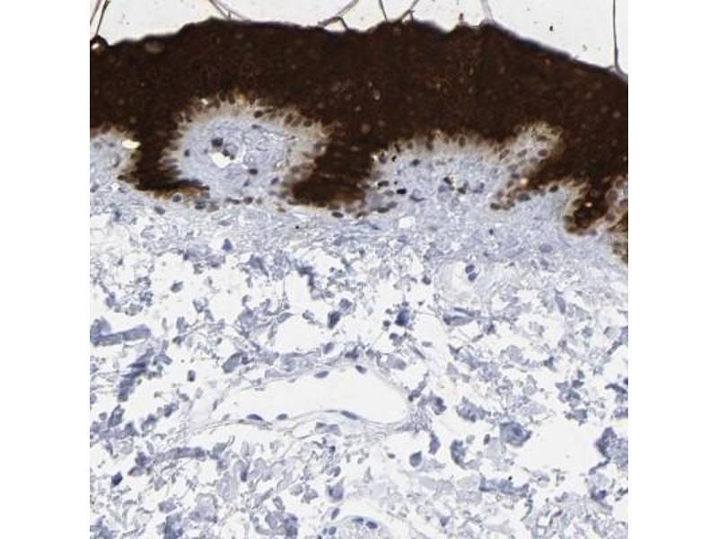 Immunohistochemistry (Paraffin-embedded Sections) (IHC (p)) image for anti-Cytokeratin 1 (KRT1) antibody (ABIN4302278)