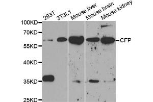 Western Blotting (WB) image for anti-Complement Factor P (CFP) antibody (ABIN2975633)