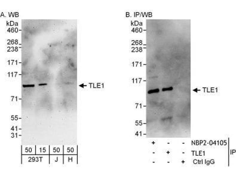 Immunoprecipitation (IP) image for anti-Transducin-Like Enhancer of Split 1 (E(sp1) Homolog, Drosophila) (TLE1) (AA 175-225) antibody (ABIN4359885)