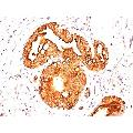 anti-MUC1 antibody (Mucin 1, Cell Surface Associated)
