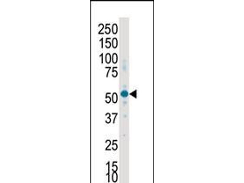 Image no. 1 for anti-serum/glucocorticoid Regulated Kinase 2 (SGK2) (AA 395-426), (C-Term) antibody (ABIN5536425)
