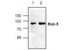 Western Blotting (WB) image for anti-Signal Transducer and Activator of Transcription 5A (STAT5A) antibody (ABIN223189)