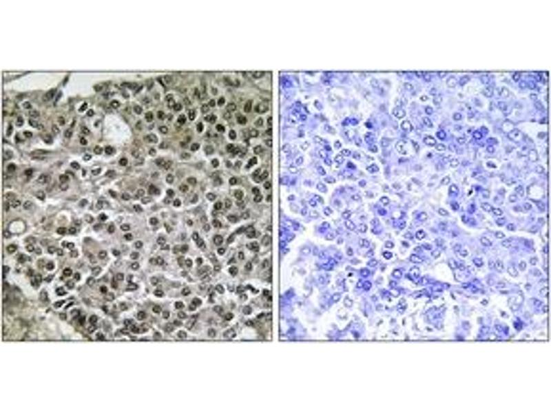 Immunohistochemistry (IHC) image for anti-Nuclear Factor of Activated T-Cells, Cytoplasmic, Calcineurin-Dependent 4 (NFATC4) (AA 642-691) antibody (ABIN1532367)