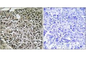 Image no. 2 for anti-Nuclear Factor of Activated T-Cells, Cytoplasmic, Calcineurin-Dependent 4 (NFATC4) (AA 642-691) antibody (ABIN1532367)