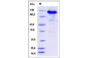 Image no. 1 for Aconitase 2, Mitochondrial (ACO2) (AA 28-780) protein (GST tag,His tag) (ABIN2008521)