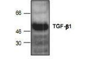 Western Blotting (WB) image for anti-TGFB1 antibody (Transforming Growth Factor, beta 1) (ABIN223608)